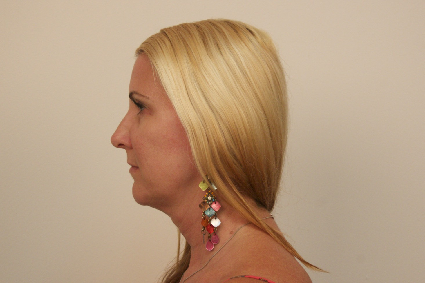 Patient after Kybella treatment