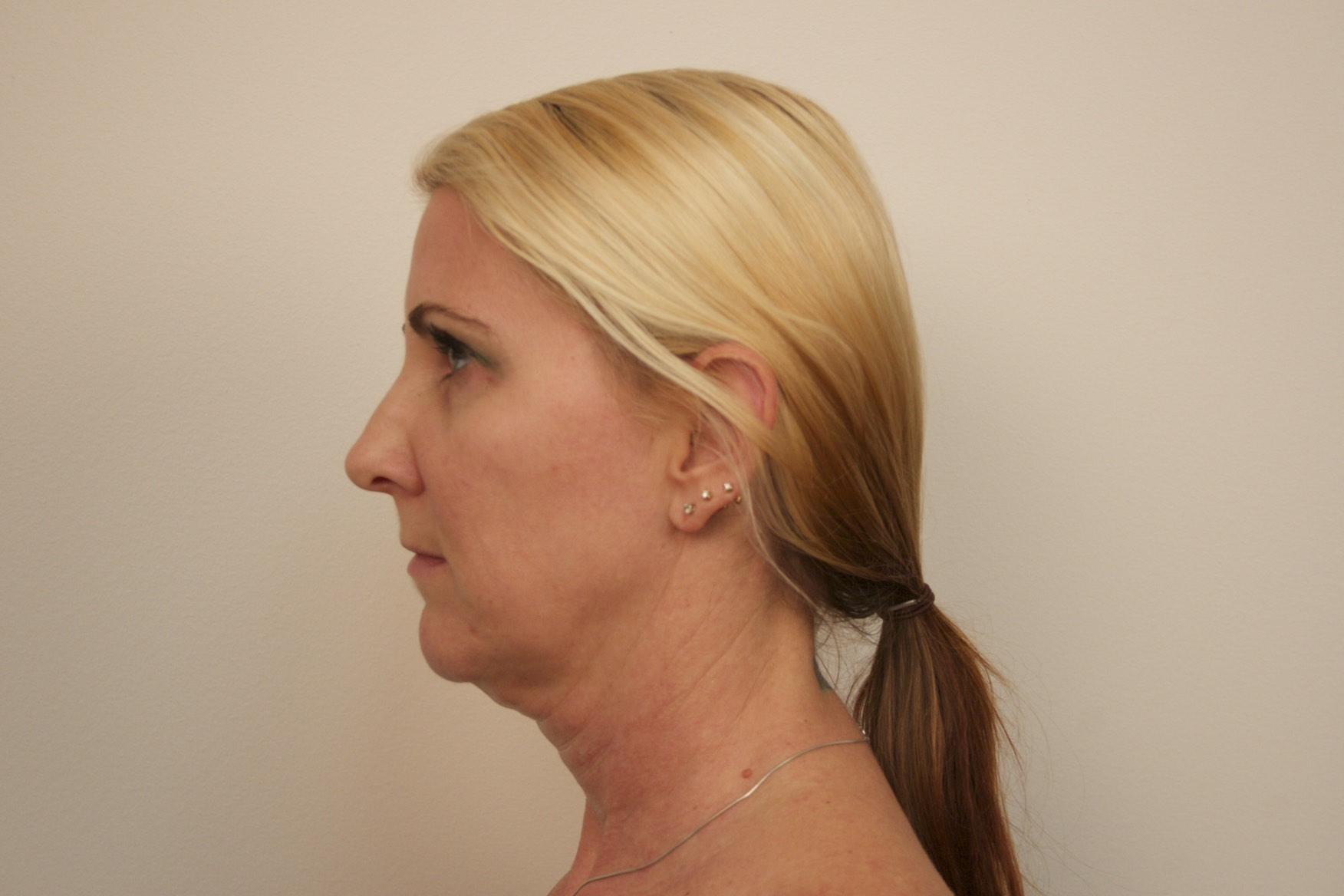 Patient before Kybella