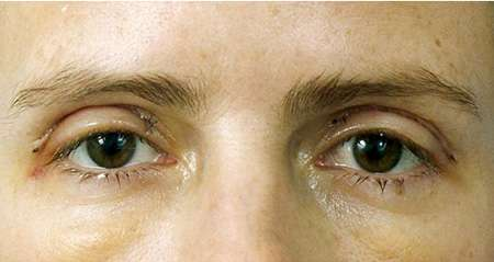 Female patient two days after surgery. Slight swelling is present on upper and lower lids. A slight incision line is present along the upper eyelids.