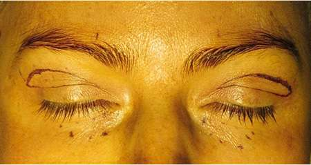 Female patient with marking on upper and lower eyelids to indicate where surgeries are to take place.