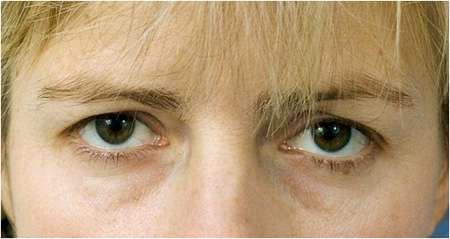 Female patient with upper eyelid droop and bags beneath her eyes.