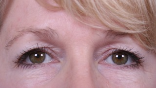 Female patient before upper and lower eyelid surgery
