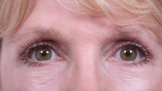 Female patient after upper and lower eyelid surgery