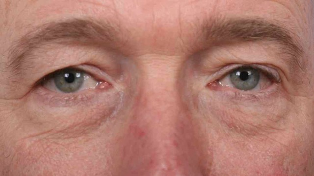 Male patient before upper and lower eyelid surgery