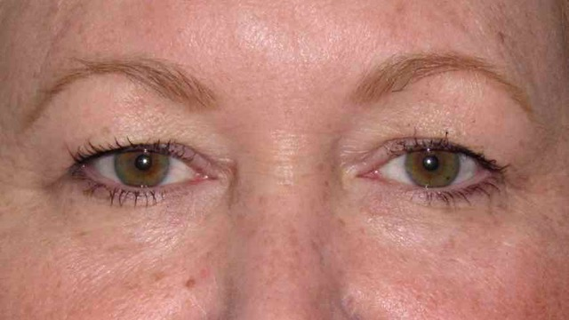 Female patient before eyelid surgery