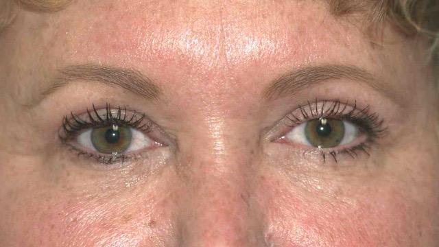 Female after eyelid surgery
