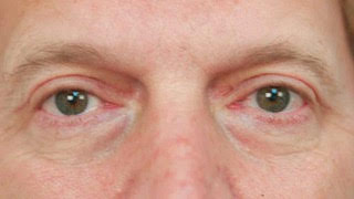 Male patient after upper and lower eyelid surgery
