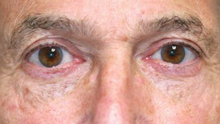 Male patient after eyelid surgery