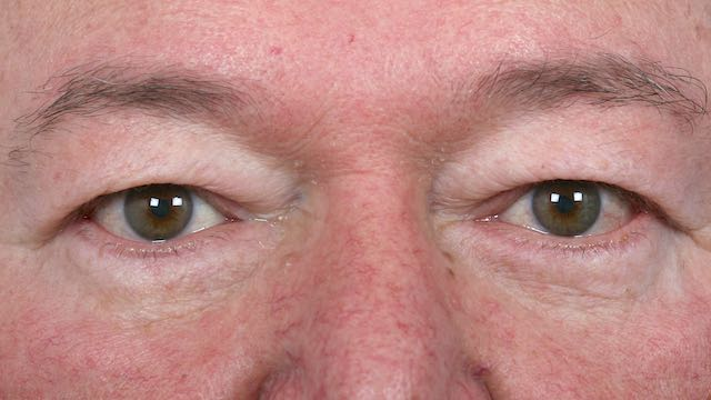 Male patient #63 before upper and lower eyelid surgery.
