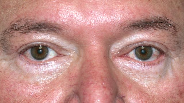 Male patient #63 after upper and lower eyelid surgery.
